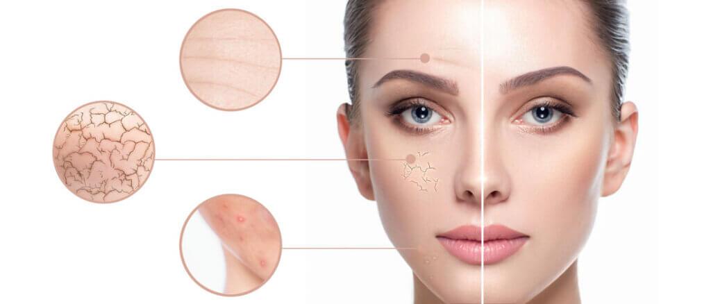 Klassische-Gesichtsbehandlug